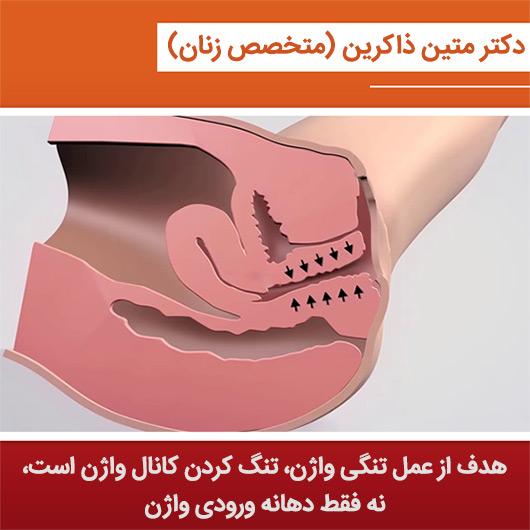 روش مناسب تنگی واژن