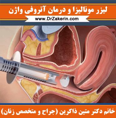 لیزر مونالیزا و درمان اتروفی واژن