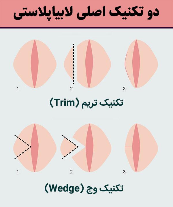 تکنیکهای لابیاپلاستی