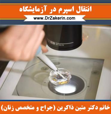 انتقال اسپرم در آزمایشگاه