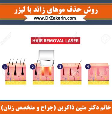 روش کار لیزرهای موهای زائد