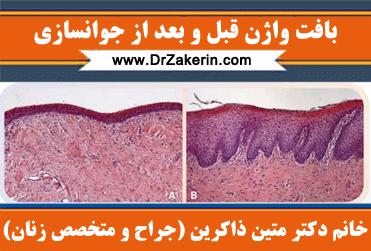 بافت واژن قبل و بعد از جوانسازی