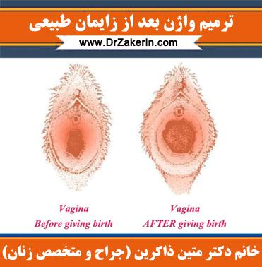 ترمیم واژن بعد از زایمان طبیعی