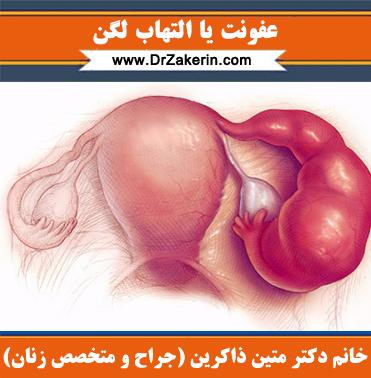 عفونت یا التهاب لگن