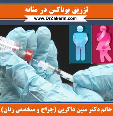 تزریق بوتاکس در مثانه