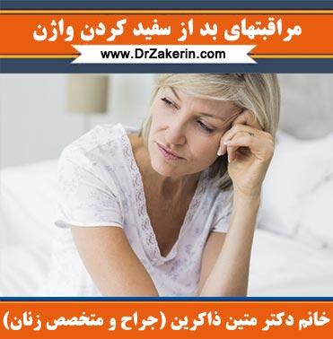 مراقبتهای بعد از سفید کردن واژن