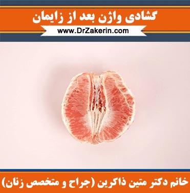 گشادی واژن بعد از زایمان