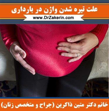 علت تیره شدن واژن در بارداری