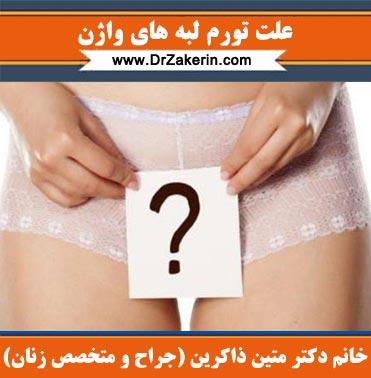علت تورم لبه های واژن