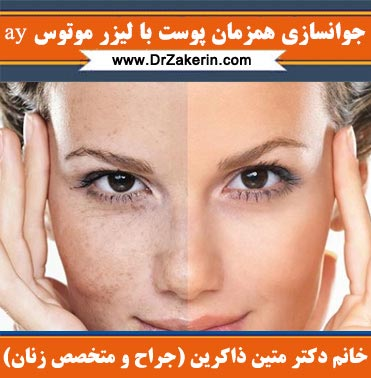 جوانسازی همزمان پوست با لیزر موتوس ay