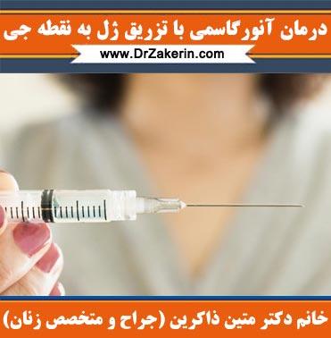 درمان آنورگاسمی با تزریق ژل به نقطه جی