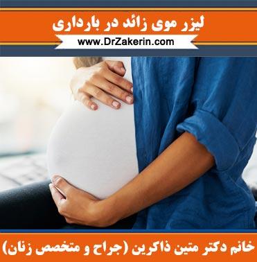 لیزر موی زائد در بارداری