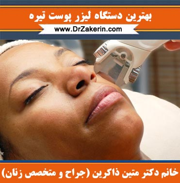 بهترین دستگاه لیزر پوست تیره