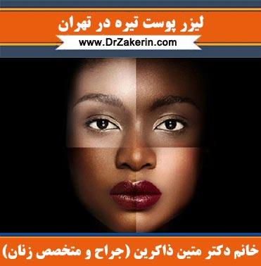 لیزر پوست تیره در تهران