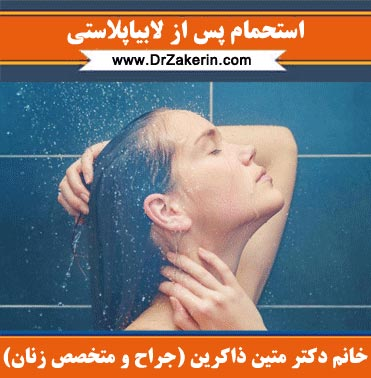 استحمام پس از لابیاپلاستی