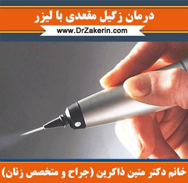 درمان زگیل مقعدی با لیزر